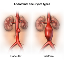 Different types of aortic aneurysms